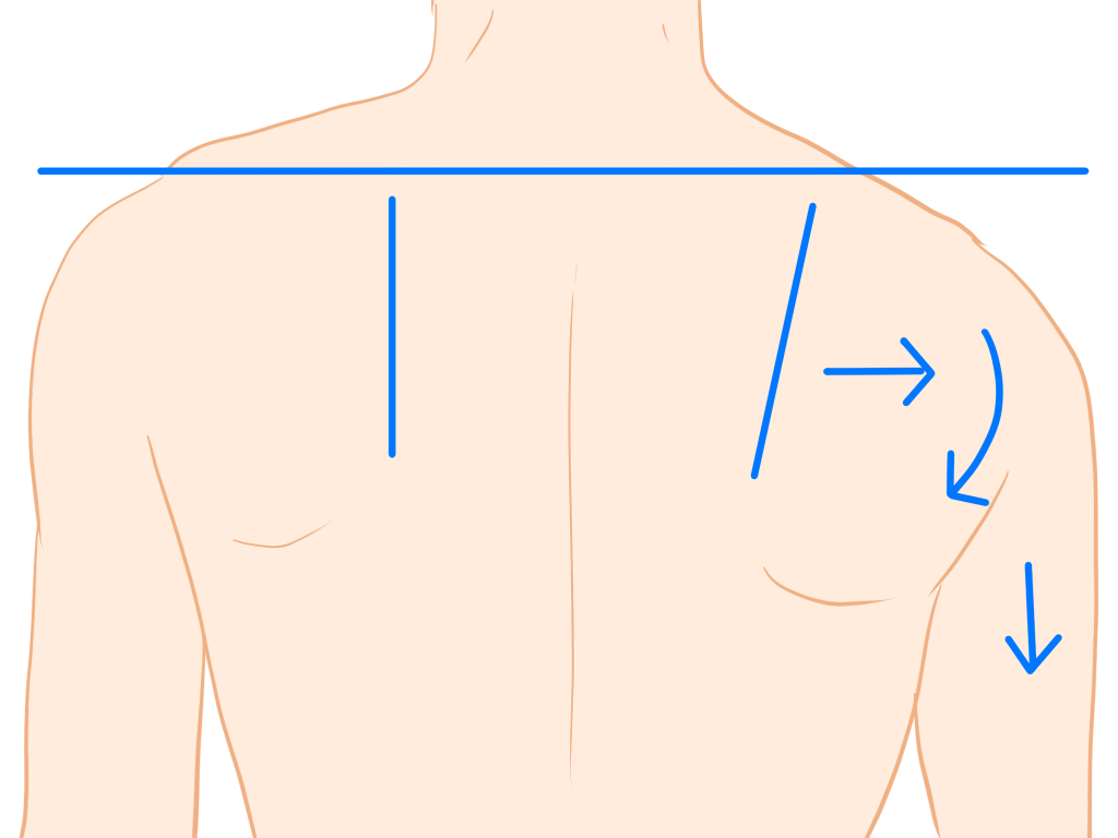 肩甲骨の左右差