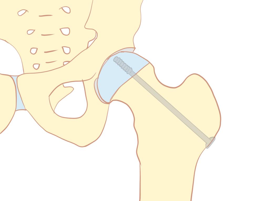 大腿骨頭すべり症手術