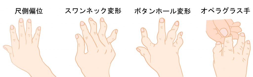 関節リウマチ手の変形