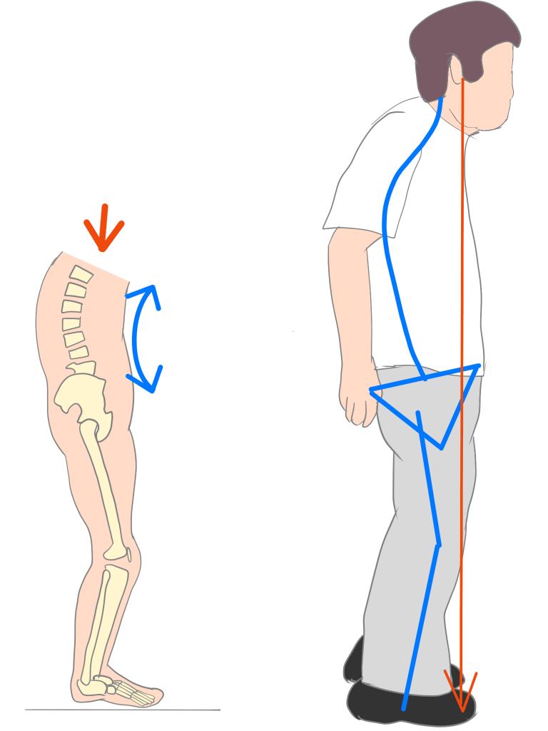 変形性腰椎症の姿勢