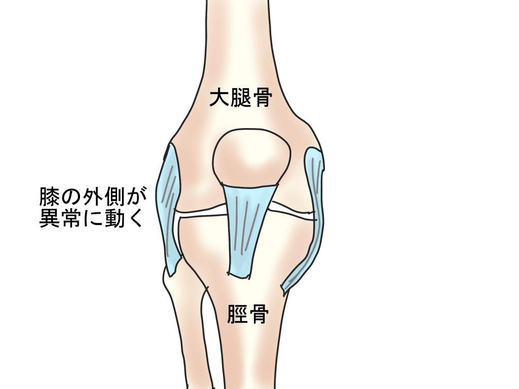 膝関節の構造
