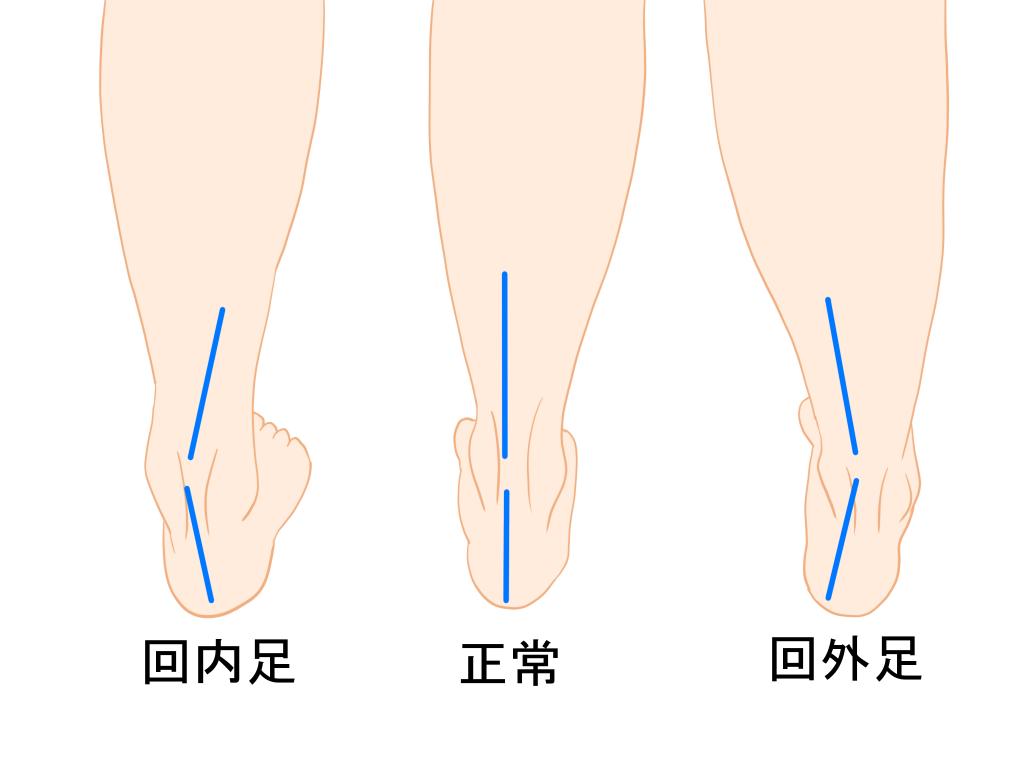 足部の変形と足根管症候群の関係