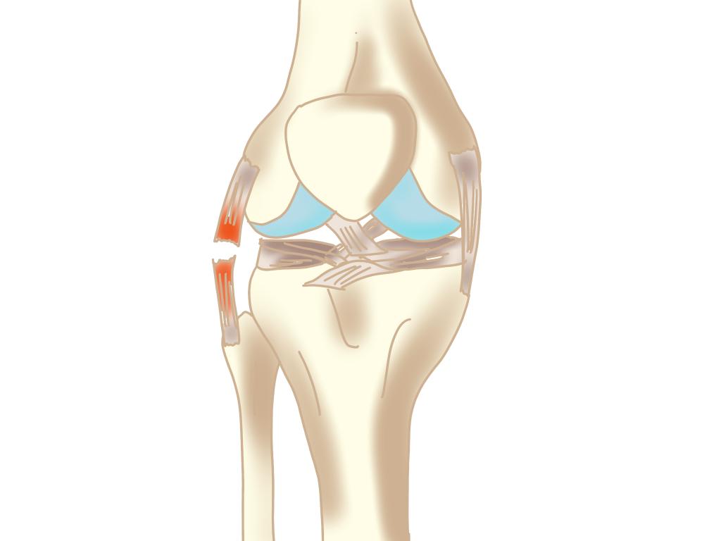 外側側副靭帯損傷