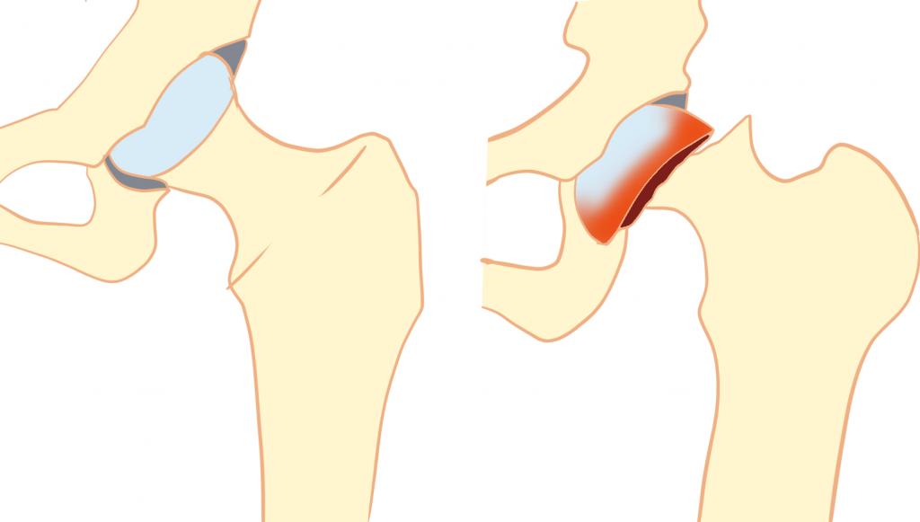大腿骨頭すべり症とは