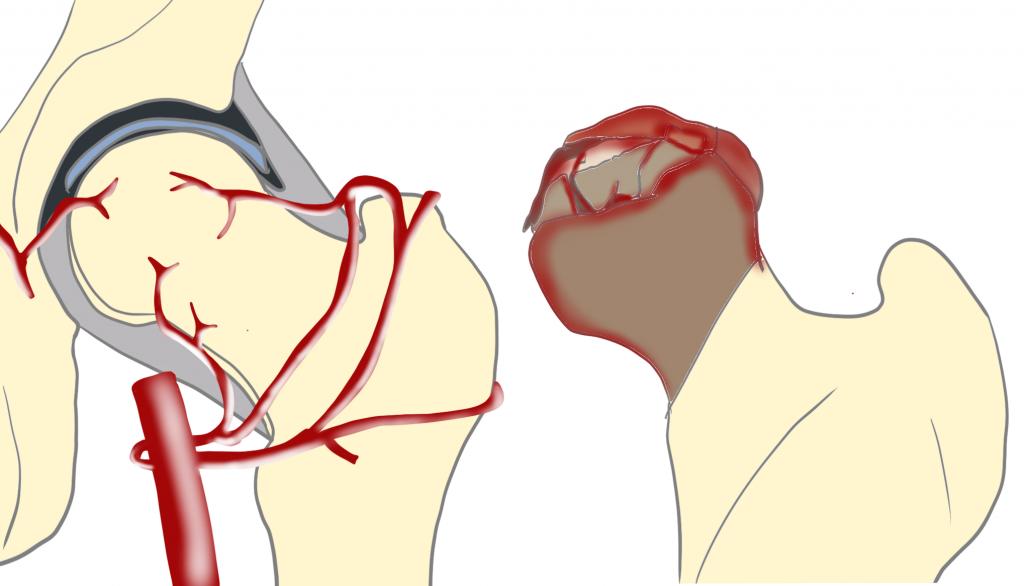 特発性大腿骨頭壊死症とは