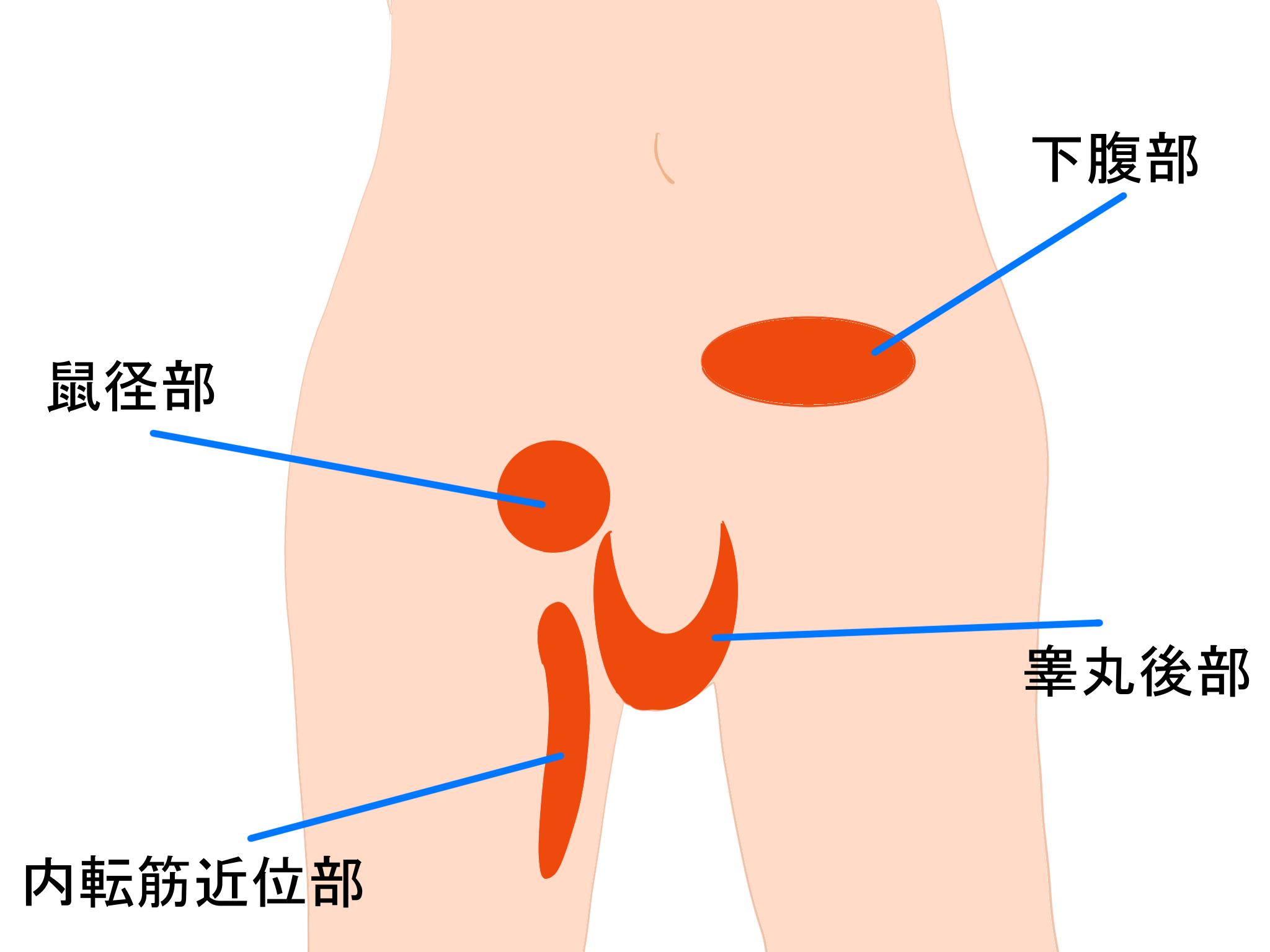 鼠径部痛症候群グロインペインシンドローム痛みの部位