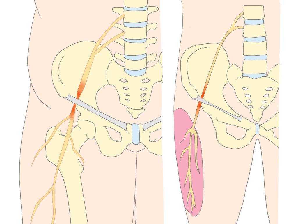 外側大腿皮神経とは画像