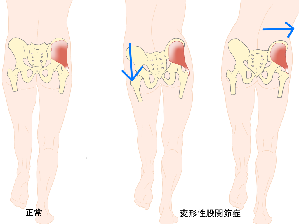 変形性股関節症の歩き方画像