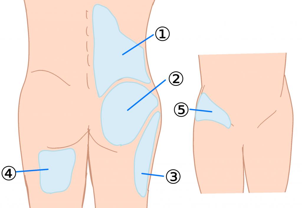 椎間関節性の腰痛の関連痛