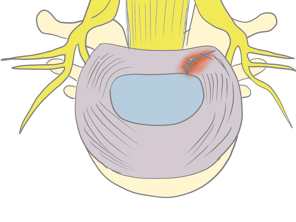 ぎっくり腰椎間板線維輪の亀裂