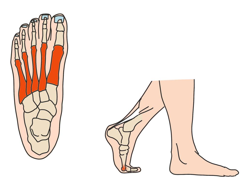中足骨頭部痛とは【金沢市のアルコット接骨院の疾患解説(足の裏の痛み)】