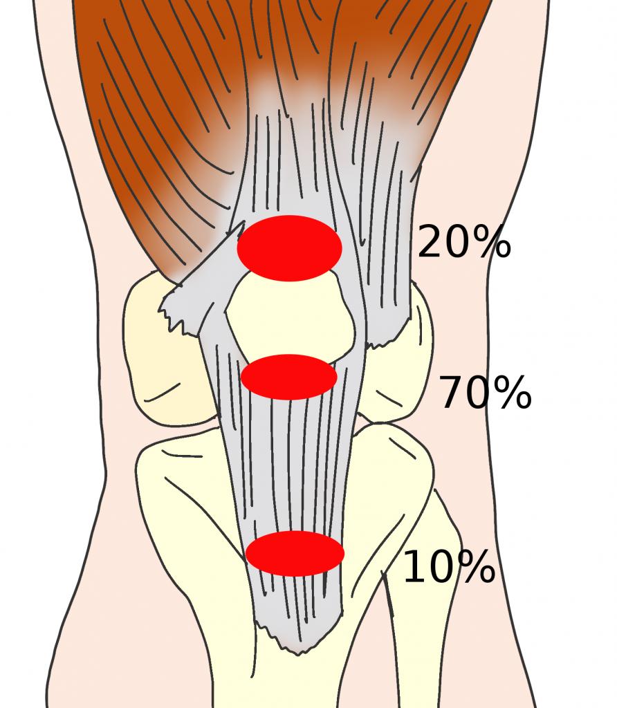 ジャンパー膝(膝蓋靭帯炎)の痛くなる場所