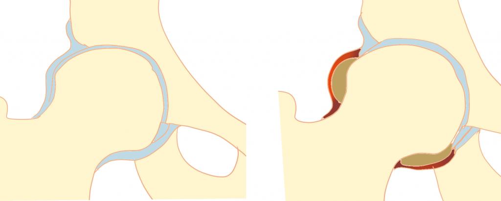 単純性股関節炎とは