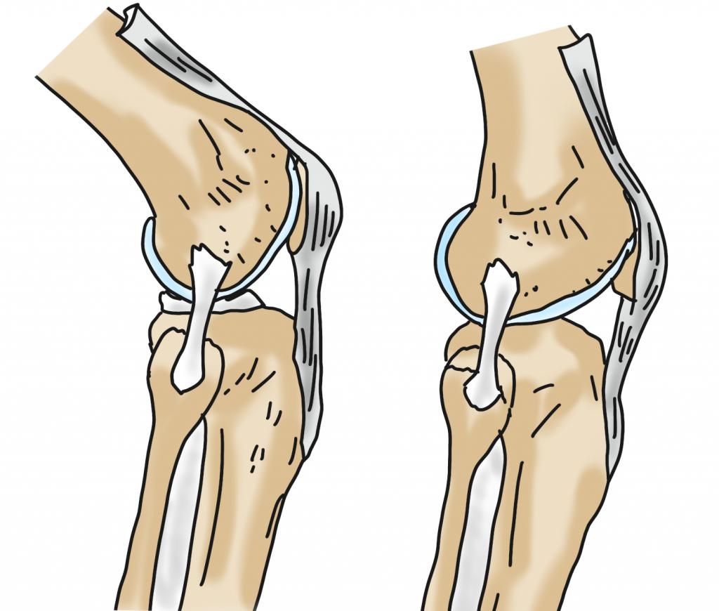 膝の外側側副靭帯とは