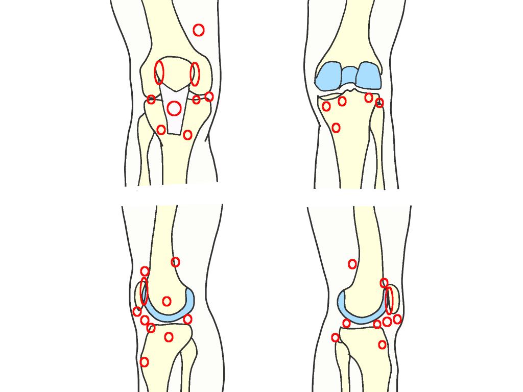 膝関節の圧痛