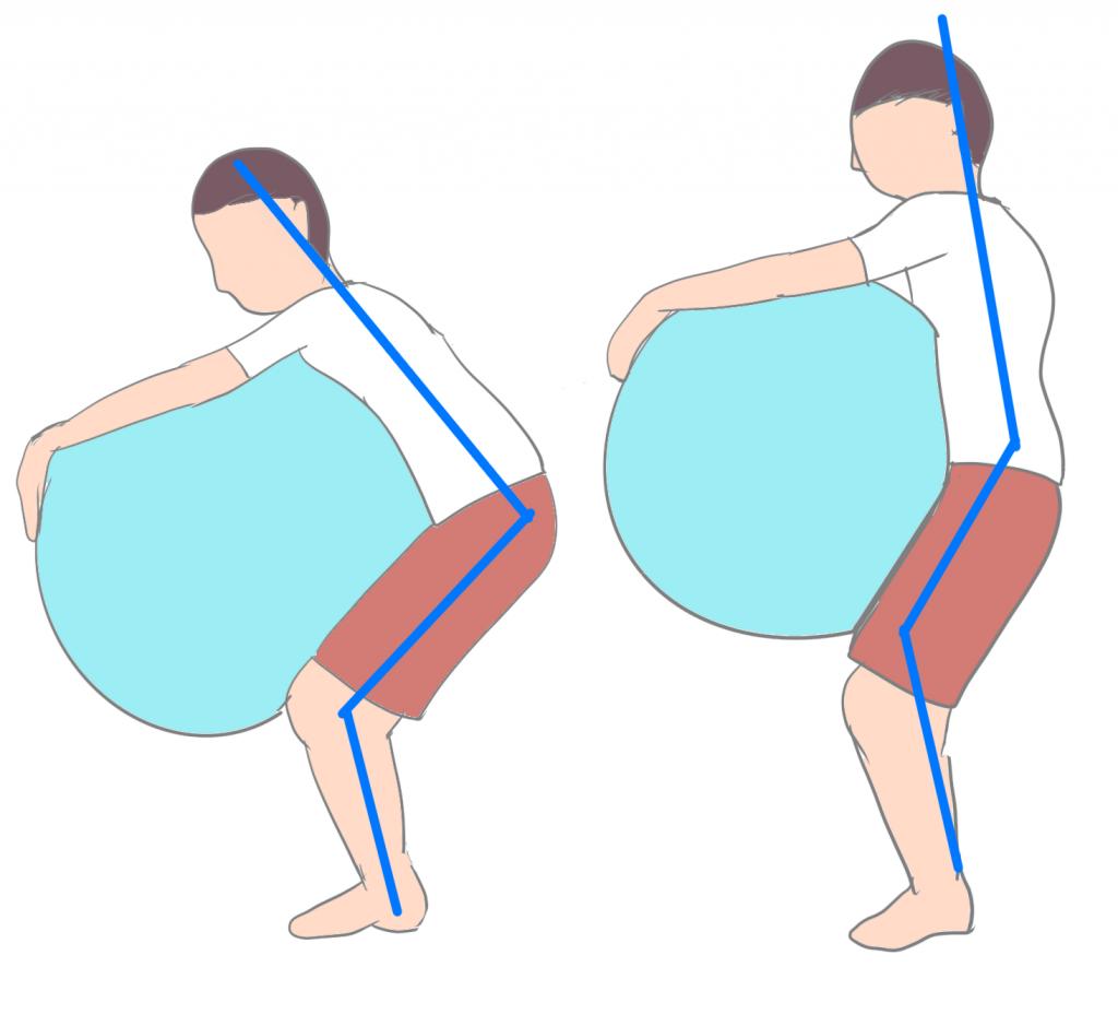 腰椎分離症ボールスクワット