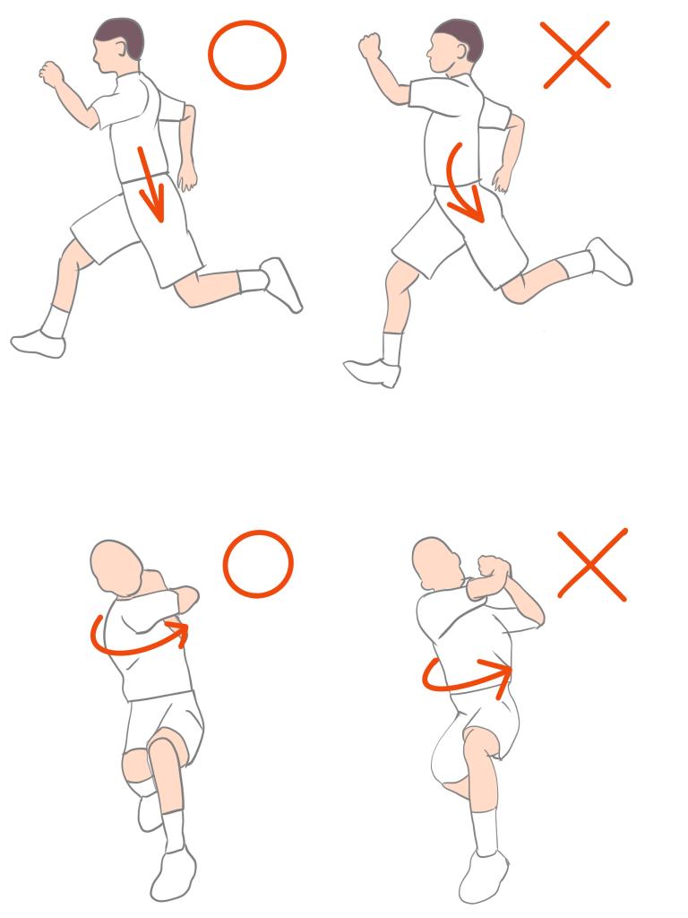 腰椎分離症になりやすい姿勢