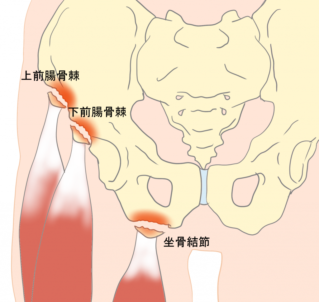 骨盤の裂離骨折坐骨結節の裂離骨折上前腸骨棘の裂離骨折下前腸骨棘の裂離骨折
