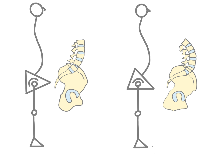 変形性股関節症股関節の安定臼蓋の被覆量増大