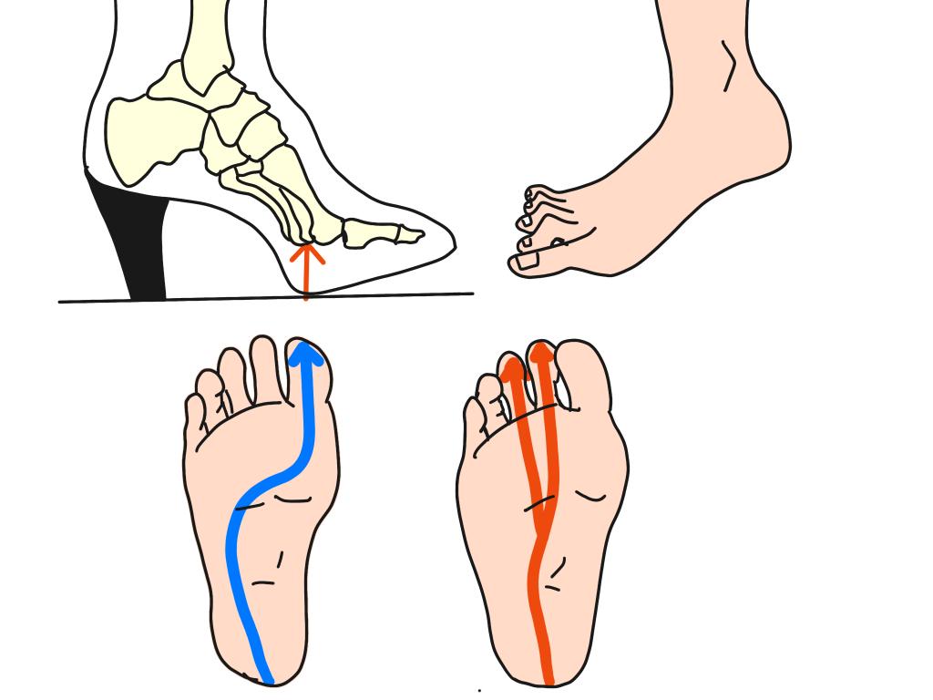 歩行での理想的な重心移動とは【金沢市のアルコット接骨院の疾患解説(足の裏の痛み)】