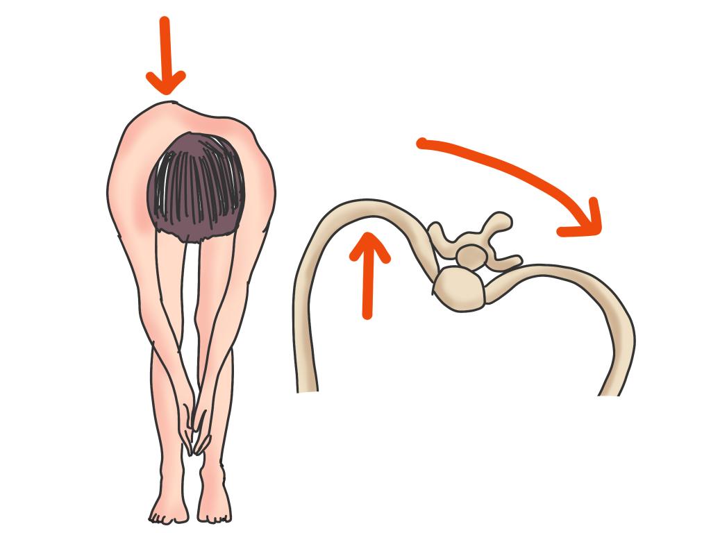 脊柱側弯症前屈検査