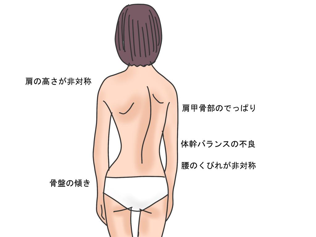 脊柱側弯症の特徴