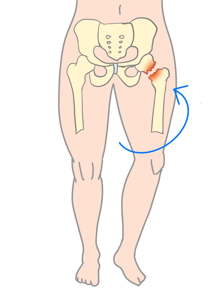 大腿骨頭すべり症足が外向きにねじれる