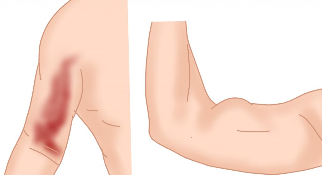 上腕二頭筋長頭腱断裂の症状とは