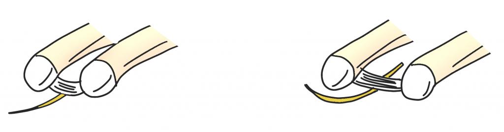 モートン病のメカニズム神経の圧迫【金沢市のアルコット接骨院の疾患解説(足の裏の痛み)】