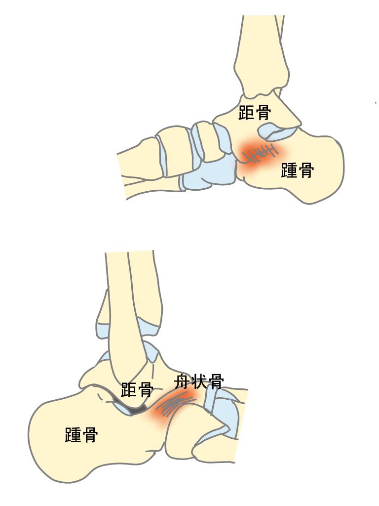 足根骨癒合症とは