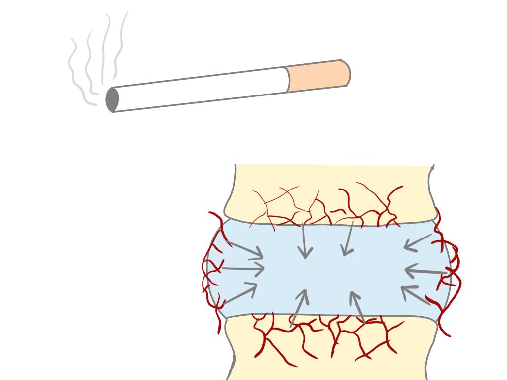 椎間板と喫煙の関係