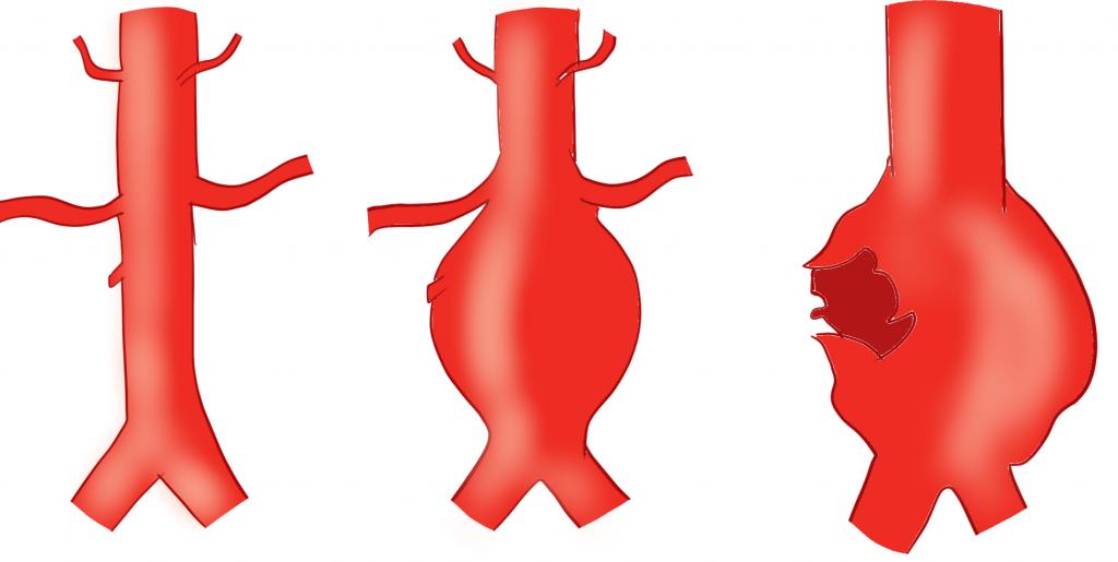 腹部大動脈瘤破裂画像