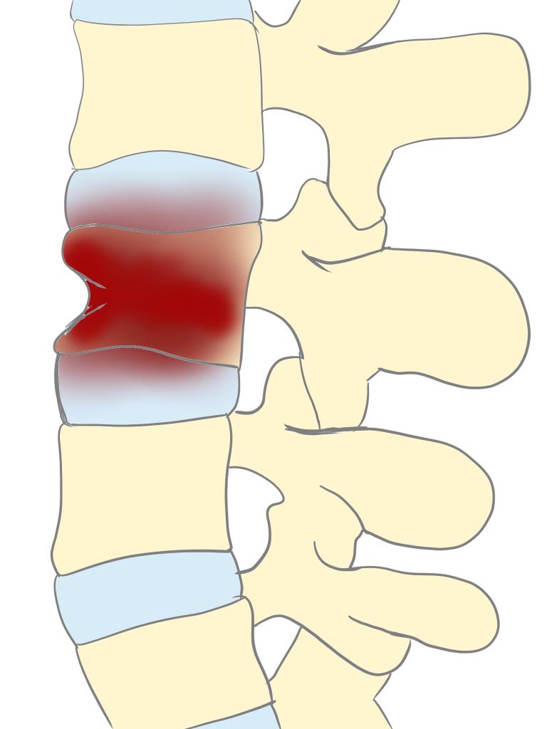 化膿性脊椎炎とは