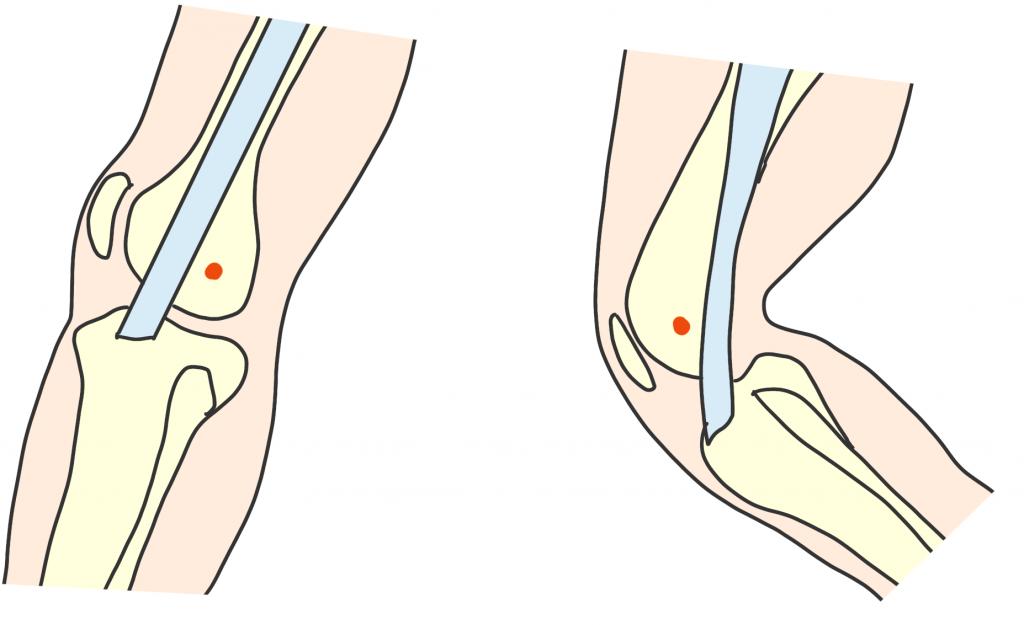 腸脛靭帯の摩擦