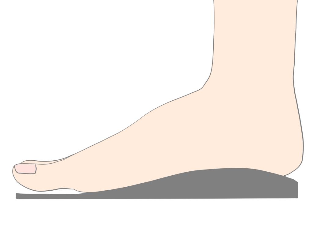 有痛性外脛骨障害 インソール【金沢市のアルコット接骨院の疾患解説(足の裏の痛み)】