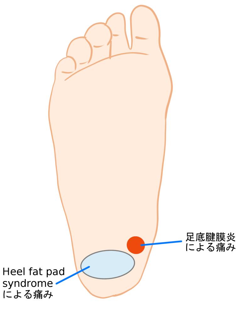 足の裏の痛みの鑑別