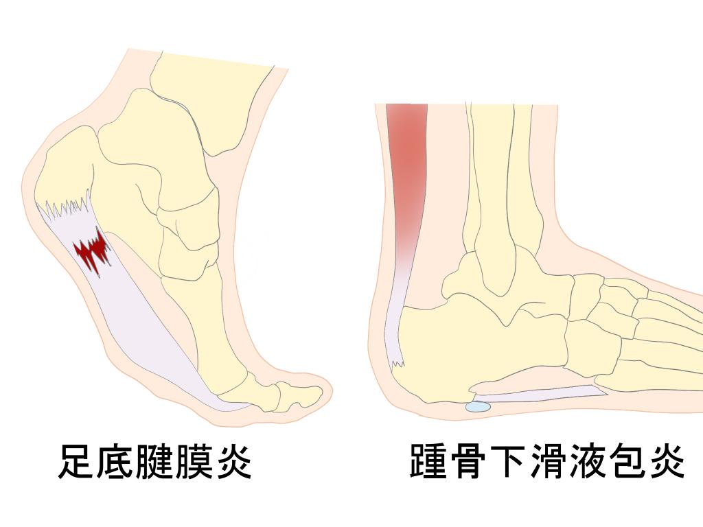 足底腱膜炎と踵骨下滑液包炎の違い