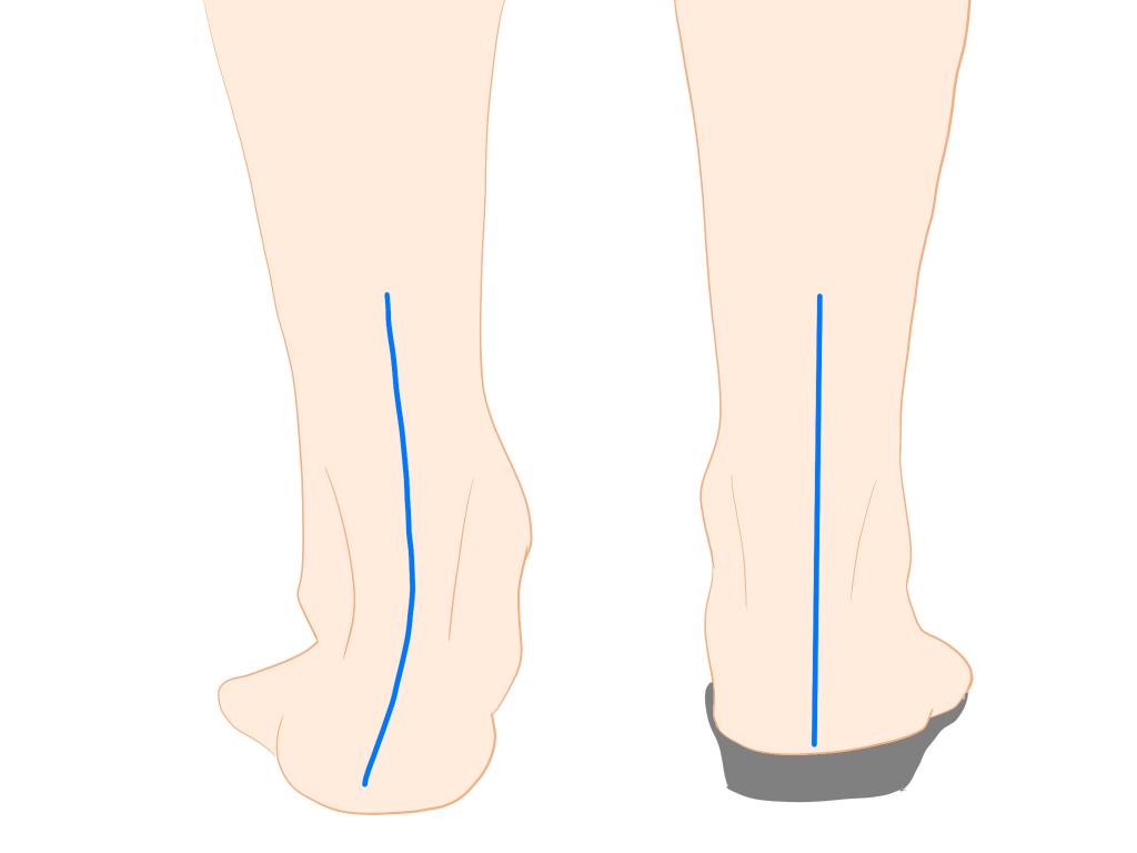インソールによる回内足の補正