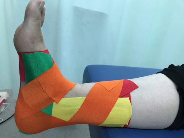 衝突性外骨腫に対するテーピング