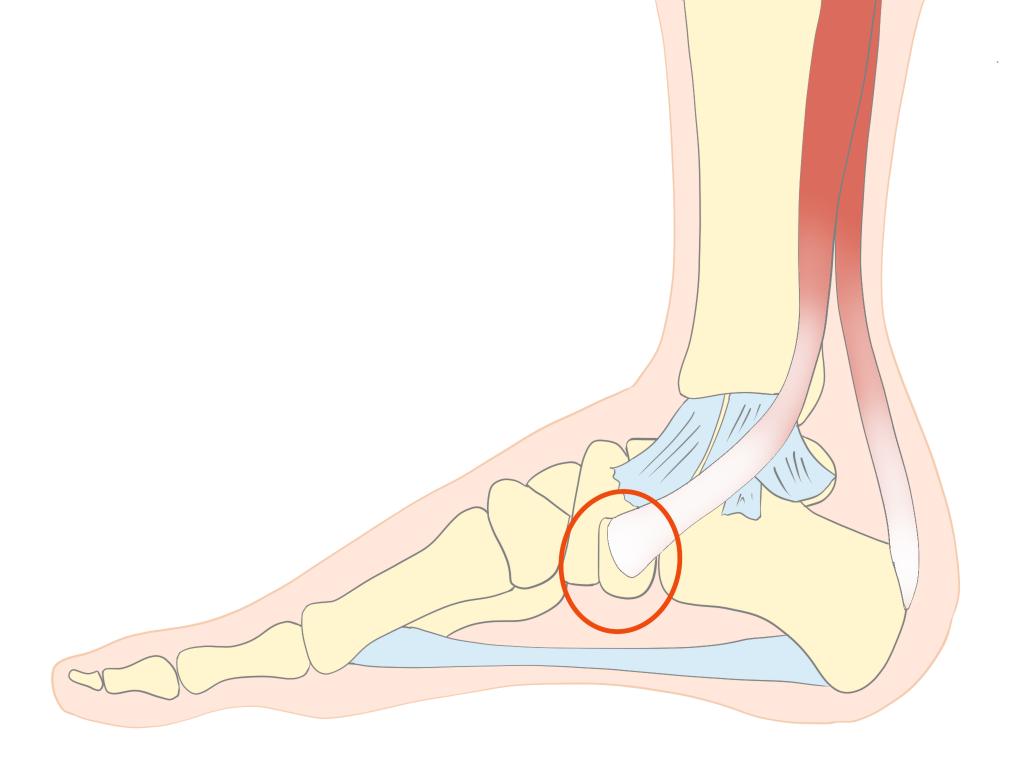 有痛性外脛骨障害 筋の付着【金沢市のアルコット接骨院の疾患解説(足の裏の痛み)】