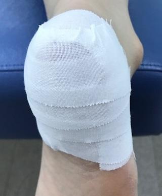 有痛性踵パッドテーピング