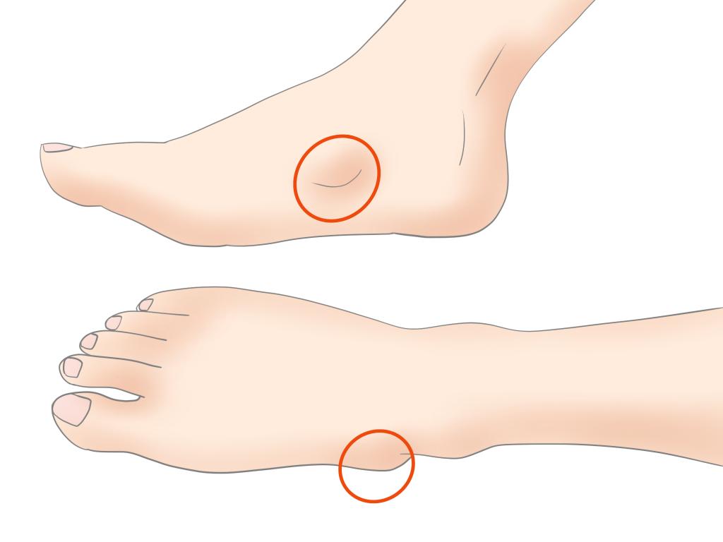 有痛性外脛骨障害【金沢市のアルコット接骨院の疾患解説(足の裏の痛み)】