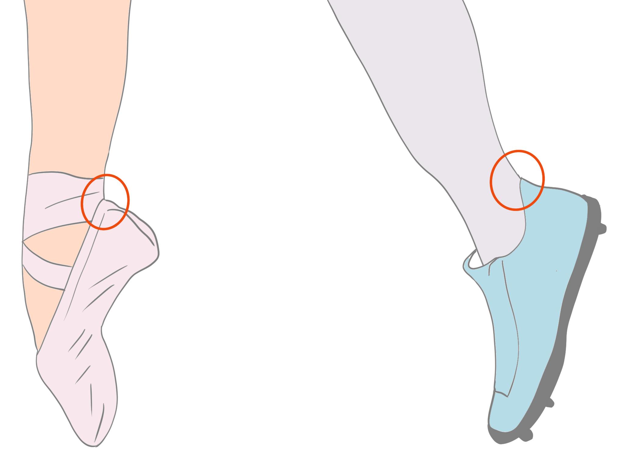足関節後方インピンジメント症候群