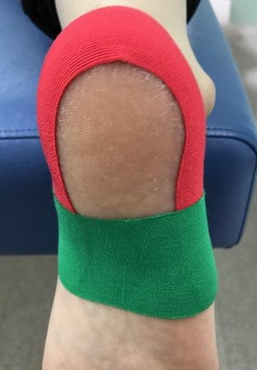 有痛性踵パッドテーピング色付き