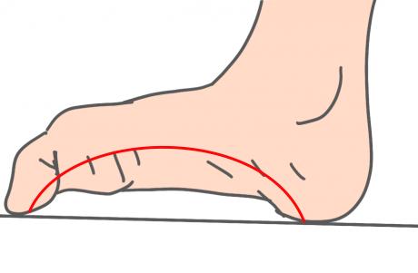 足底腱膜サポート歩行