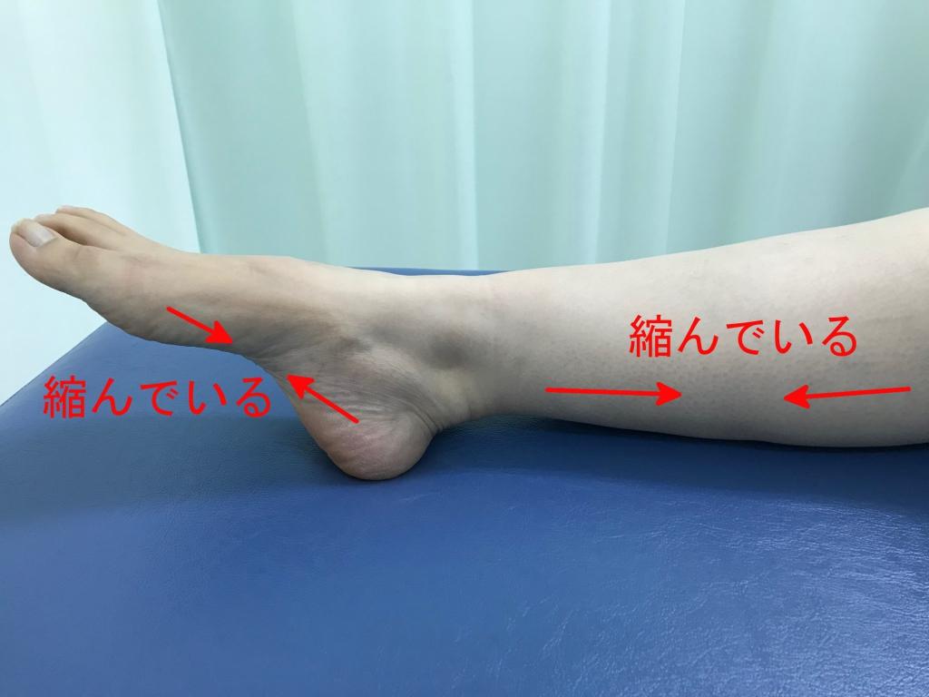 足底腱膜炎夜間の足の肢位