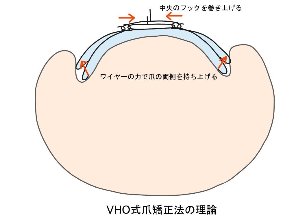 巻き爪治療VHO式爪矯正法