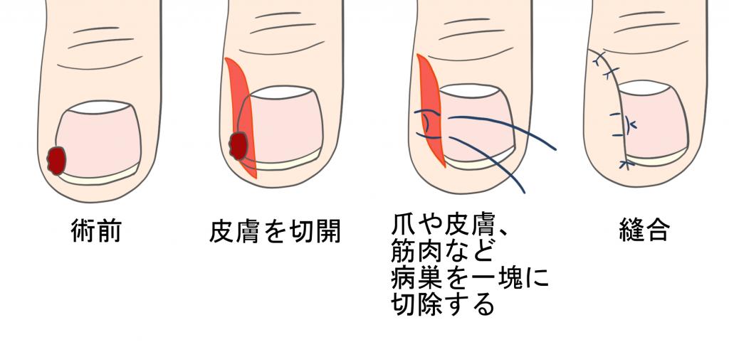 巻き爪の手術(鬼塚法)