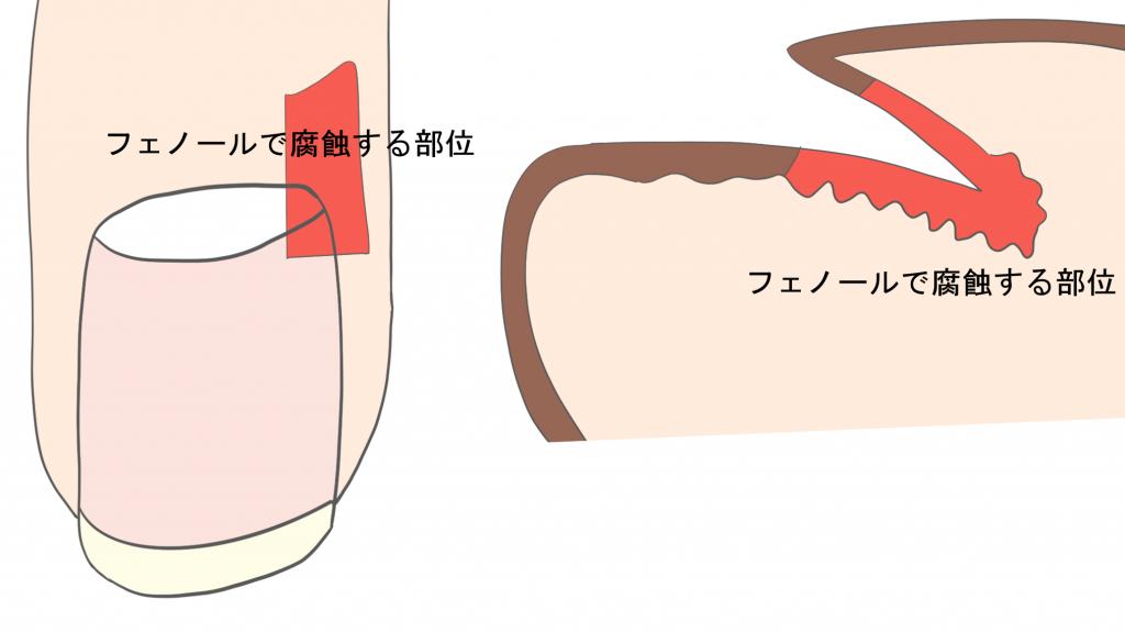 巻き爪の手術(フェノール法)