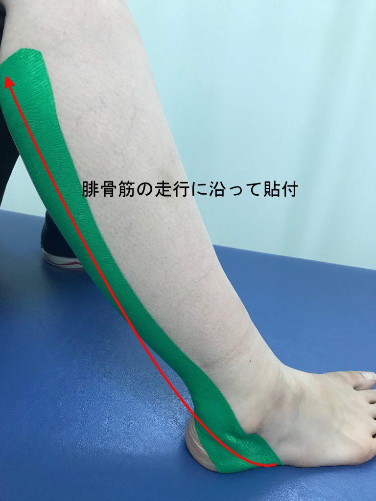 腓骨筋テーピング②
